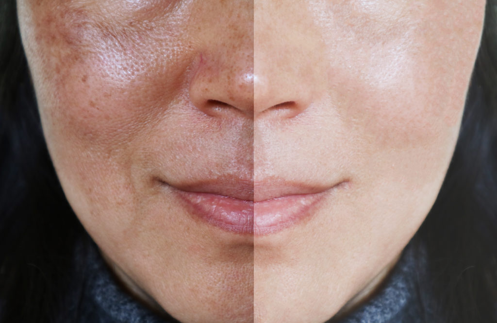 visage avant-après