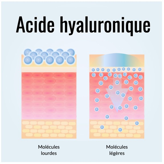 acide hyaluronique